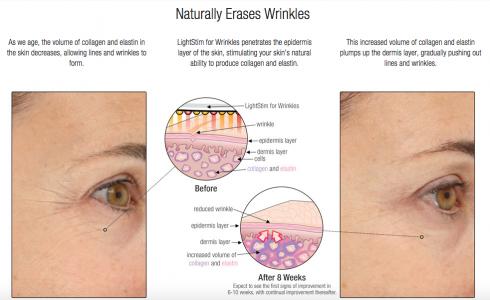 LightStim for wrinkles, before and after
