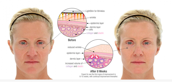 before and after, LightStim, wrinkle reduction